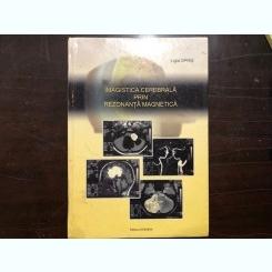 OPRIS LIGIA - IMAGISTICA CEREBRALA PRIN REZONANTA MAGNETICA