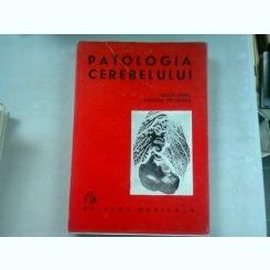 PATOLOGIA CREIERULUI - CEZAR IONEL