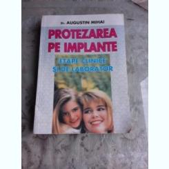 PROTEZAREA PE IMPLANTE - AUGUSTIN MIHAI